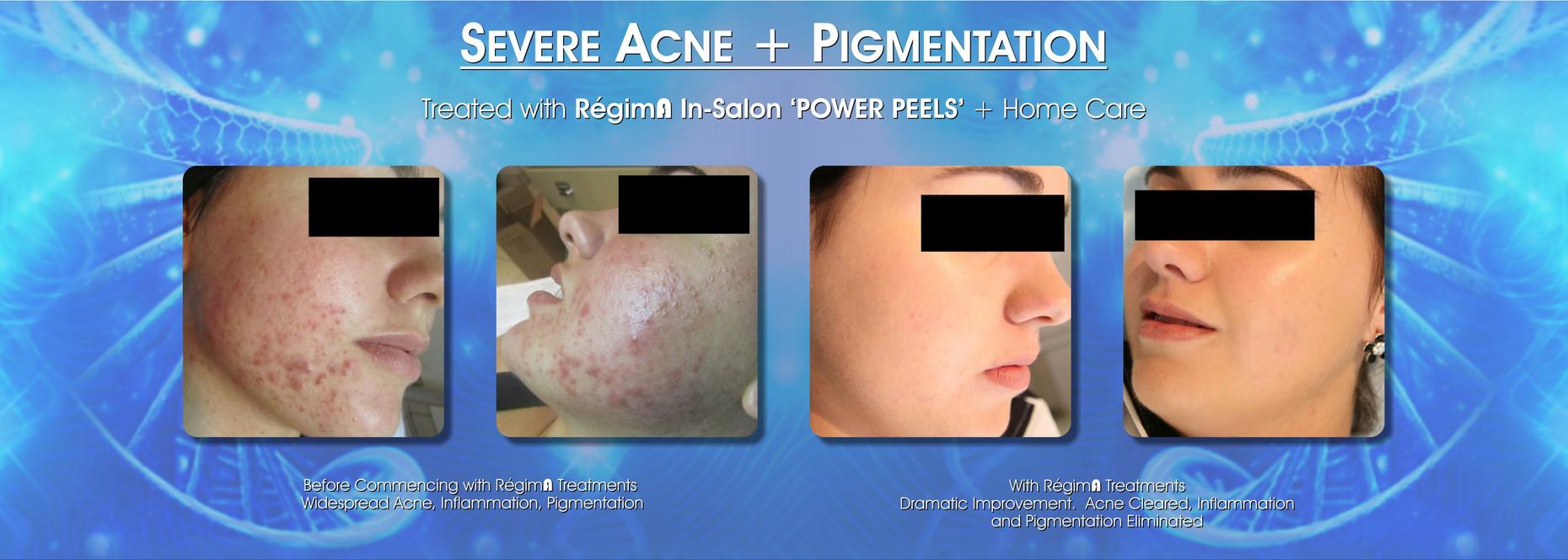 Severe Acne & Pigmentation