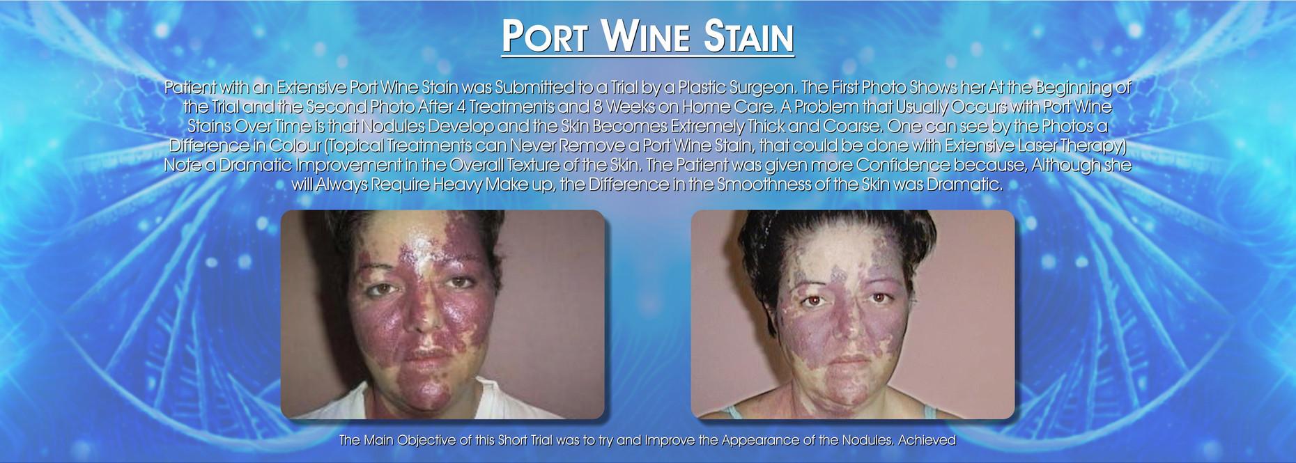 Port Wine Stain