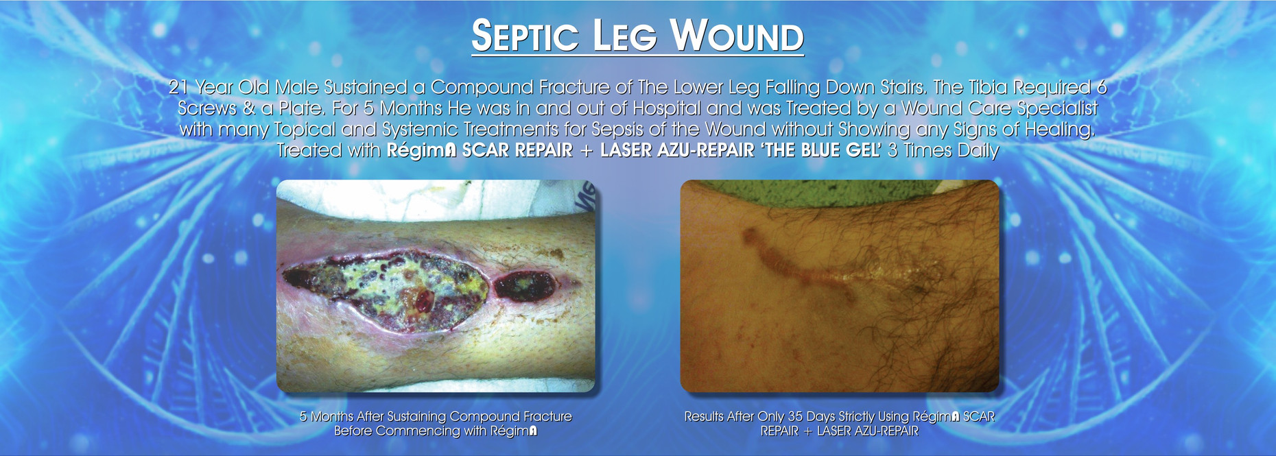 Septic leg wound