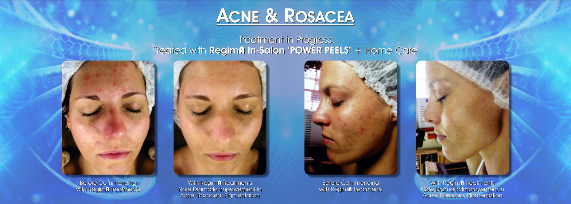 Acne and Rosaea Treatment