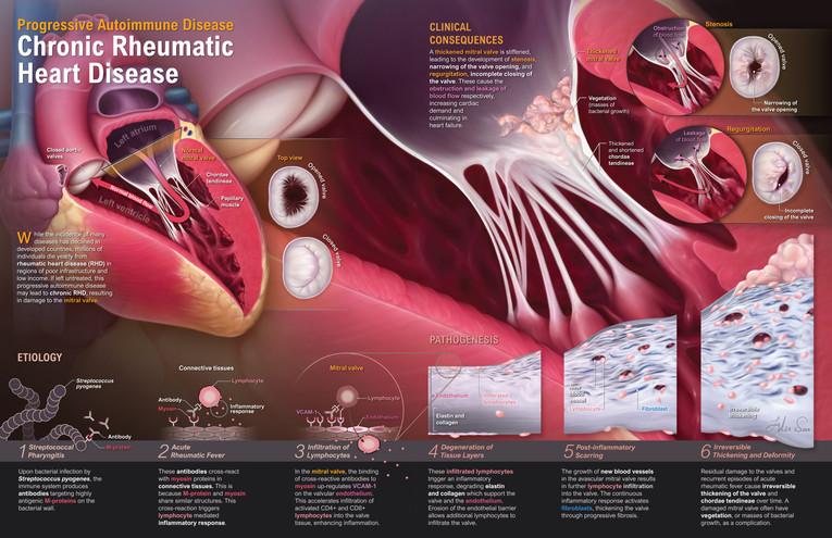 Pathology.RHD.ver012.final5-01-01.jpg