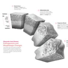 Medical illustration | Pathology study with tissue cubes