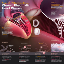 Medical illustration | Chronic Rheumatic Heart Disease