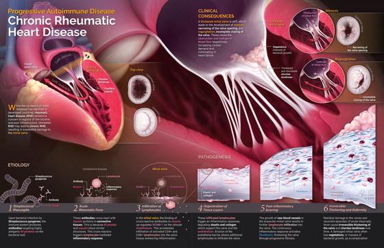 Chronic Rheumatic Heart Disease
