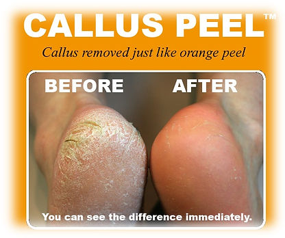 Callus Peel luxury foot treatment before and after results