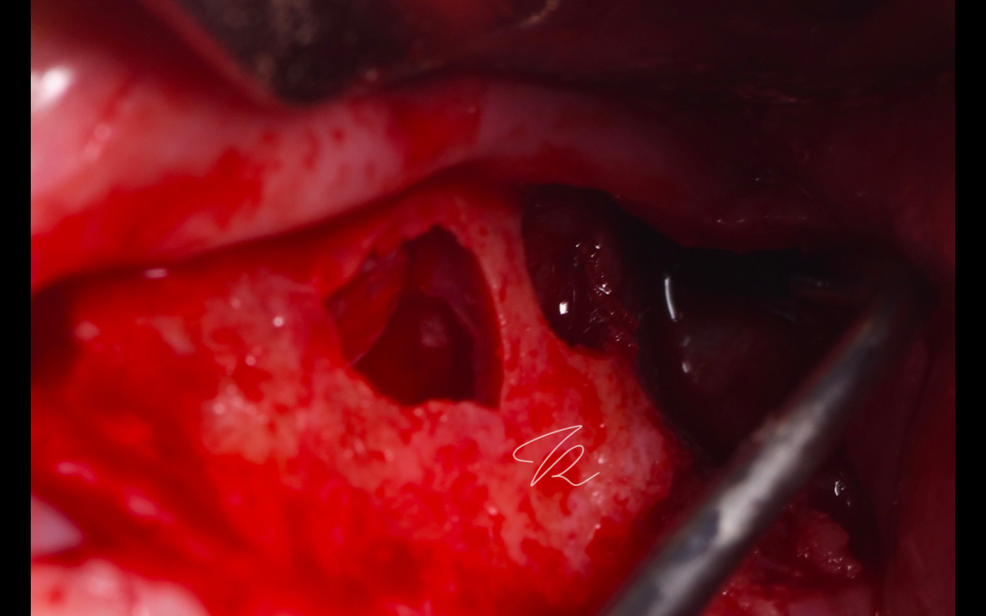 Lateral sinus lift: double window design due to septa