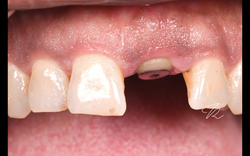 Healing result with modified healing abutment