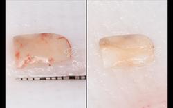 Harvesting graft from tuberosity, half de-epithelialized