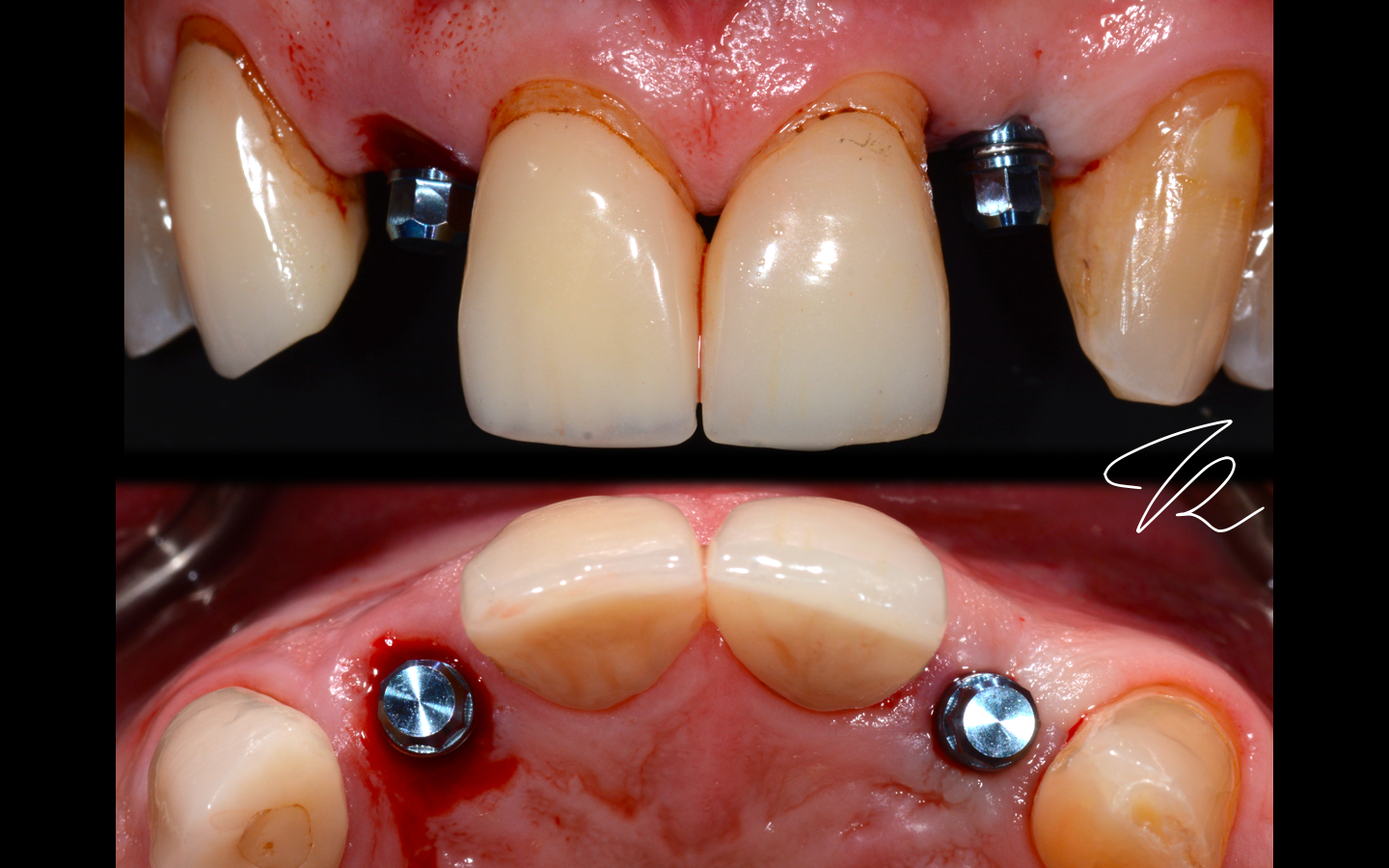 #12 immediate implant placement, #22 flapless implant placement