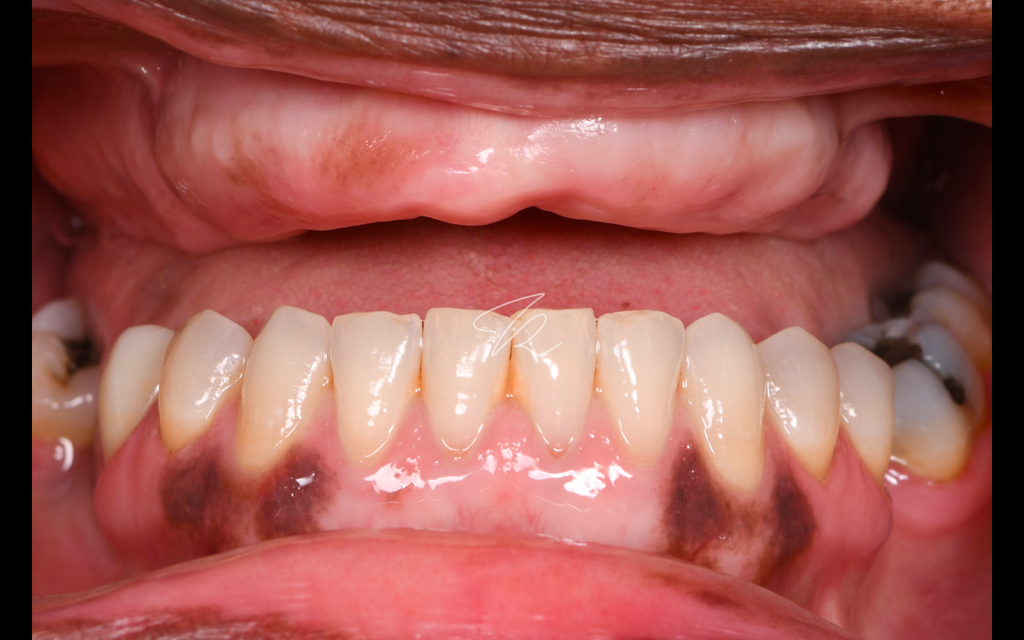 Full arch case: edentulous maxilla