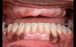 Full arch case: edentulous maxilla