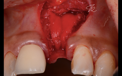 Early implant placement with contour GBR, papilla sparing incision