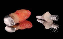 Immediate implant placement with custom healing abutment