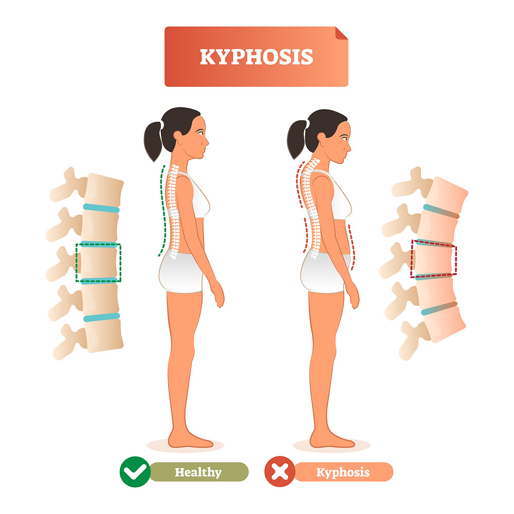 Increase kyphosis of thoracic spine