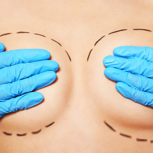 What will I look like after getting my implants removed?