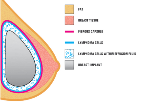 BIA-ALCL (Breast Implant Associated Anaplastic Large Cell Lymphoma)