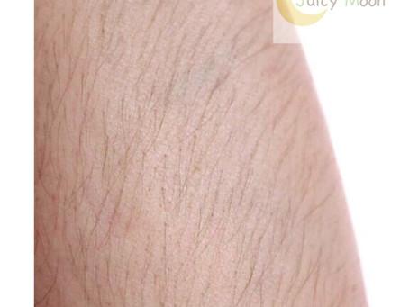 蝶式糸除毛で腕もスッキリします