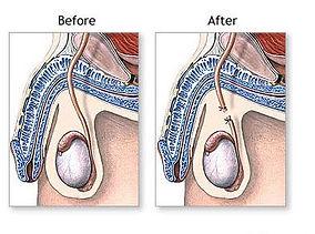 Sterilisation af mand før og fter