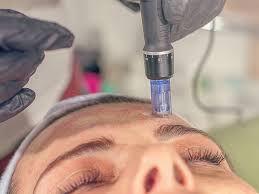 MICRONEEDLING TREATMENT