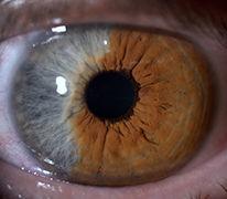 Augenveränderungen, Iris, Doppelfarbigkeit, Angebohren, Erkrankt