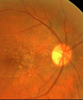 Augenfundus Bildaufnahme