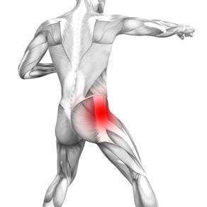 Piriformis Syndrome: Symptoms, Causes & Rehab