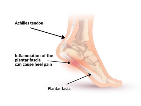 Plantar Fasciitis: Symptoms, Causes & Rehab