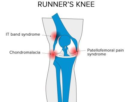 Runners Knee: Symptoms, Causes & Rehab