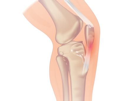 Patellar Tendonitis: Symptoms, Causes and Rehab
