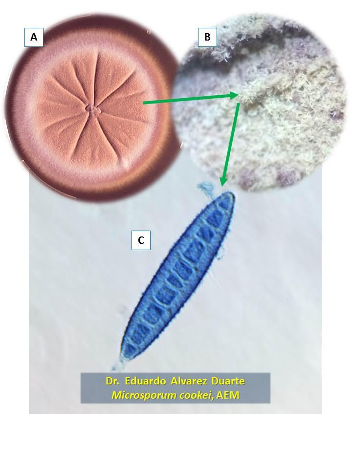 Microsporum cookei
