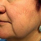 Facial Spider Veins Before laser treatment