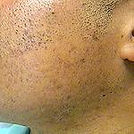 Acne After treatment skin of color