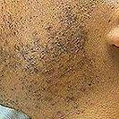 Acne Before treatment skin of color