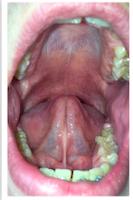Ankyloglossia tongue-tie myofunctional therapy speech therapy