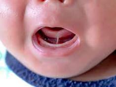 Ankyloglossia AKA Tongue Tie