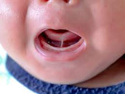 tongue-tie oromyofunctional therapy speech therapy
