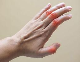 artrosis mano 2.jpeg