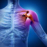 lesiones de hombro 03.jpg