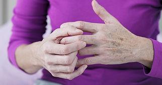 artrosis mano 2.jpg