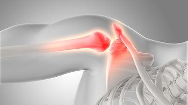 lesiones de hombro 01.jpg