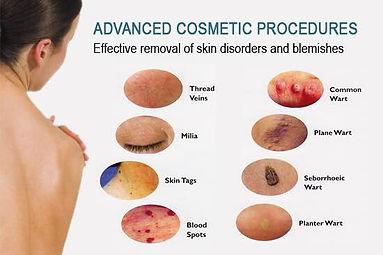 advanced-cosmetic-procedures.jpg