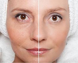 ipl skin rejuvenation 2.jpg