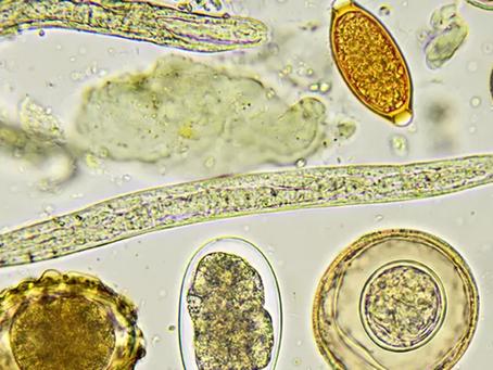 Usuwanie pasożytów biorezonansem.