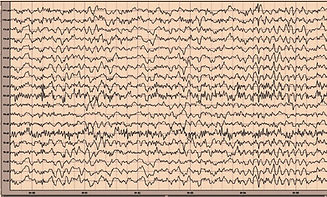 Six-s-of-raw-EEG-tracings-for-the-eyes-o