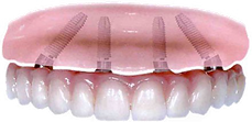 general dentistry sorriso studio dentistico dottor antonio grimaldi sondrio