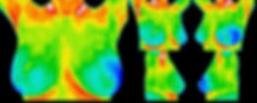 Thermography thermal imaging DITI meditherm Body & Soul Palos Heights IL Illinois breast screening
