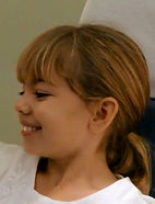 Dr Zierhut's West Hills orthodontics patient
