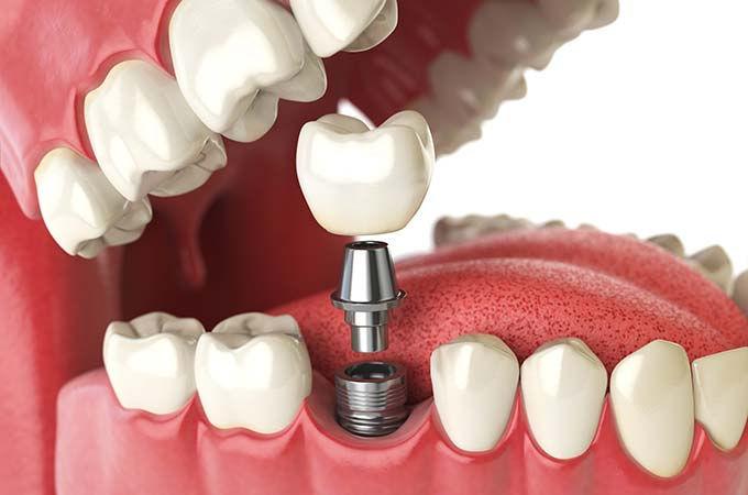 dental-implant-open-jaw.jpg