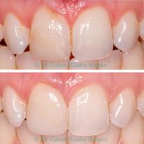Reconstrucao Dental Resina Direta