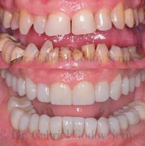 Reabilitação Oral.jpg